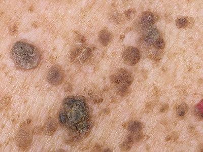 Кератопапиллома с воспалением