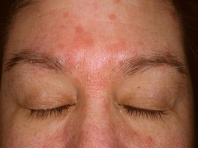 аллергия на лице дерматит