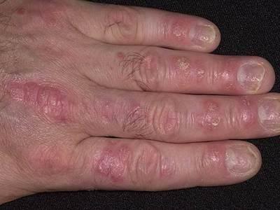Псориаз на руках симптомы лечение кремы и мази от псориаза на руках и ладонях