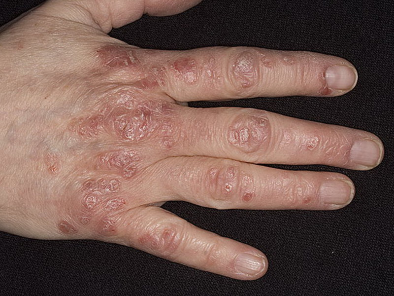 Псориаз фото симптомы и лечение у взрослых и детей
