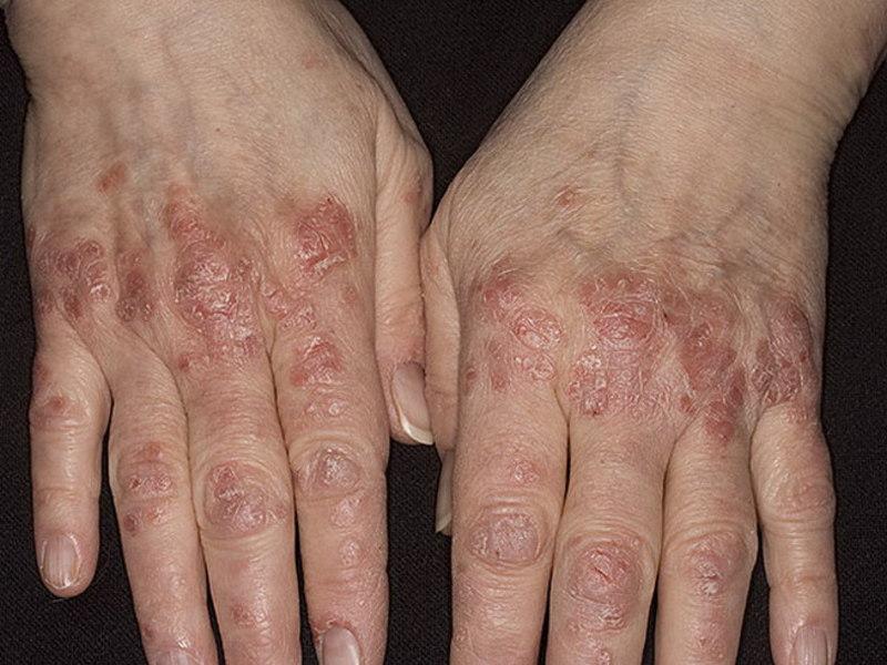 Что такое псориаз фото симптомы лечение