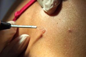 Клиника лазерной косметологии и antiage гинекологии LazerJazz