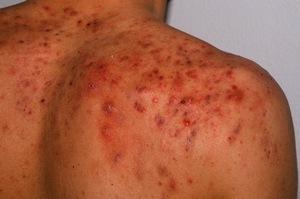 Причины появления угрей спине