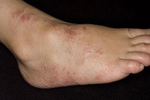Разновидности дерматита