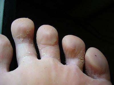Грибок между пальцами ног фото лечение