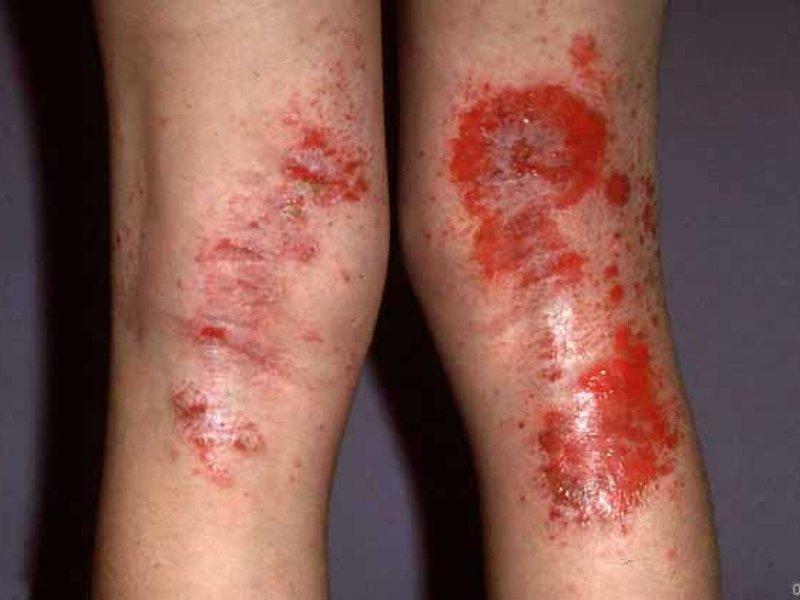 Атопический дерматит у детей фото лечения