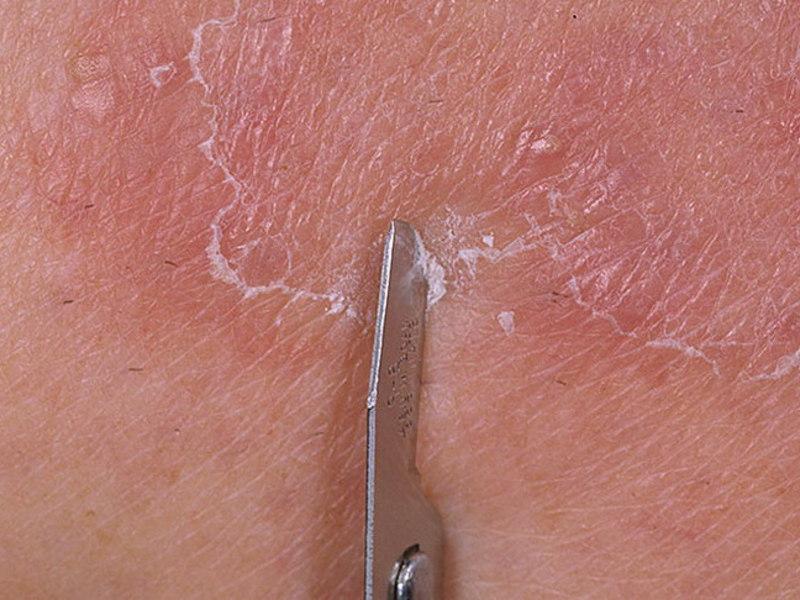 Лечение грибка гладкой кожи