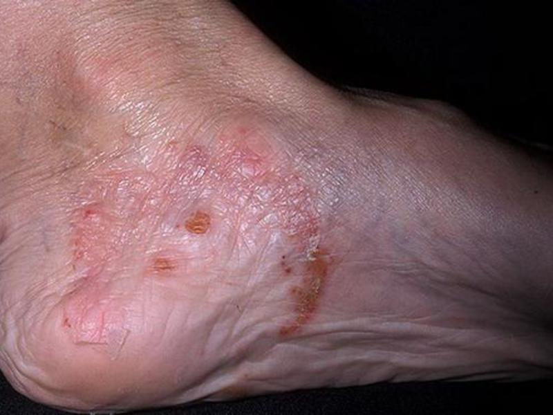 Грибковое заболевание ногтей народные методы лечения