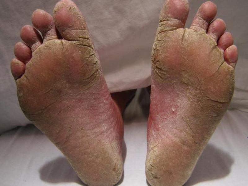 Грибковые заболевания стопы ног лечение