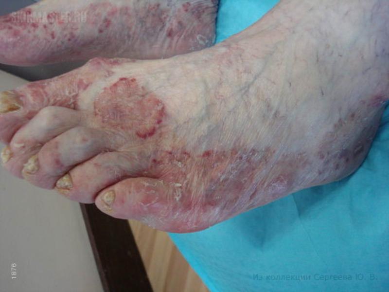 Ломкость ногтей причины и лечение у женщин