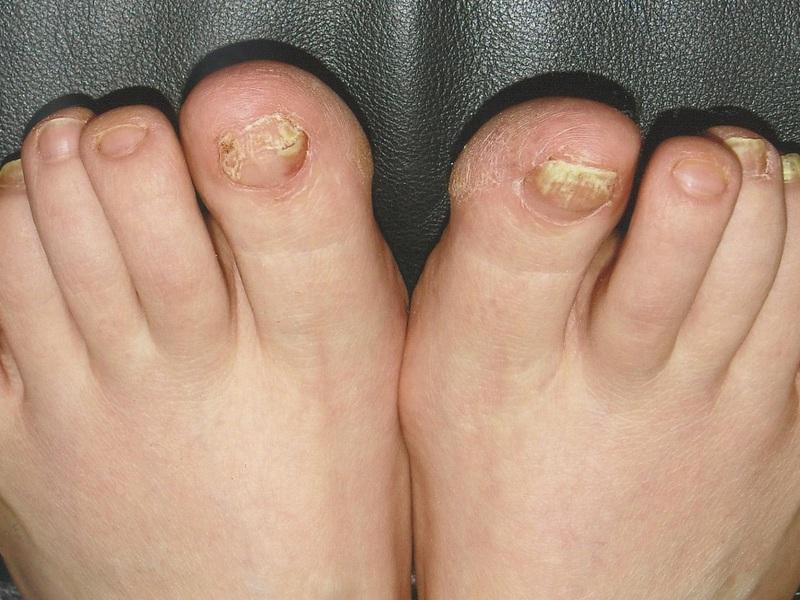 Перекись водорода против грибка на ногтях ног