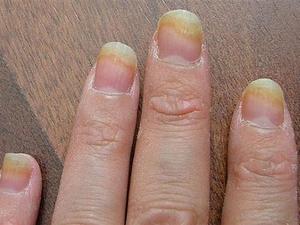 Грибок кожи ногтей рук фото