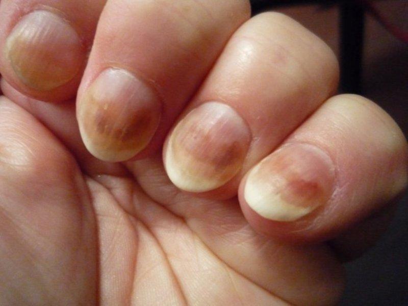 грибок ногтей лечение в кирове