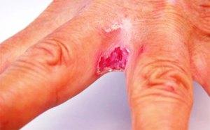 Экземы на руках: причины, симптомы и их фото, методы лечения
