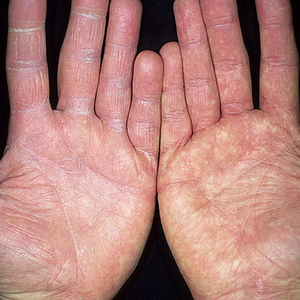 Грибковое заболевание на руках