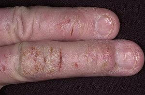 Проблема с кожей на пальцах