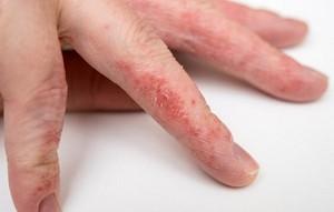 Как проявляется заболевание на пальцах