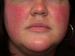 Розацеа заболевание кожи на лице