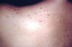Сыпь при дерматите у детей фото