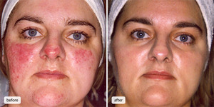 Как лечить розацеа на лице