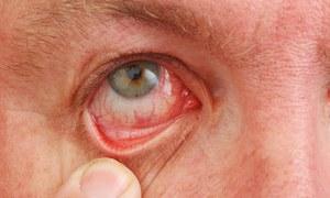 Раздражение глаз при розацеа