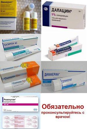 Антибиотик в составе мази: эффективная борьбы с прыщами на лице