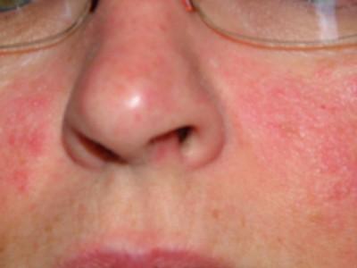 Высыпания на теле при заболевании печени фото
