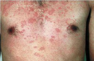 Репродукция вируса гепатита и