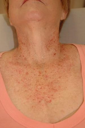Лечение гепатита с генотип 3а стоимость лечения