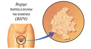 Вирус папилломы человека у женщин 6 и 11 тип