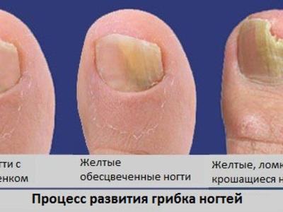 Почему появляется грибок на ногтях на ногах