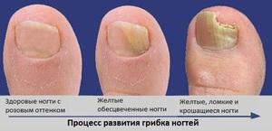 Грибок на ногтях - это заболевание, которым может заразиться человек в общественных местах.