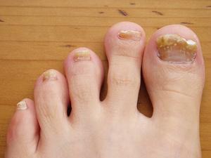 Грибковые заболевания ногтей на ногах проявляются повышением жесткости ногтя, изменением его вида.