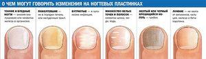 Грибковые инфекции на ранних стадиях лечатся достаточно просто.