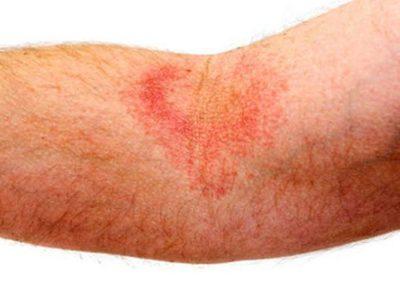аллергия в виде ожога на теле