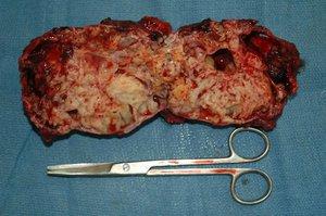 Картина раковых опухолей