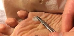 Что такое шипига и как она выглядит
