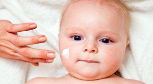 Сыпь аллергическая у малышей появляется чаще всего на щечках.
