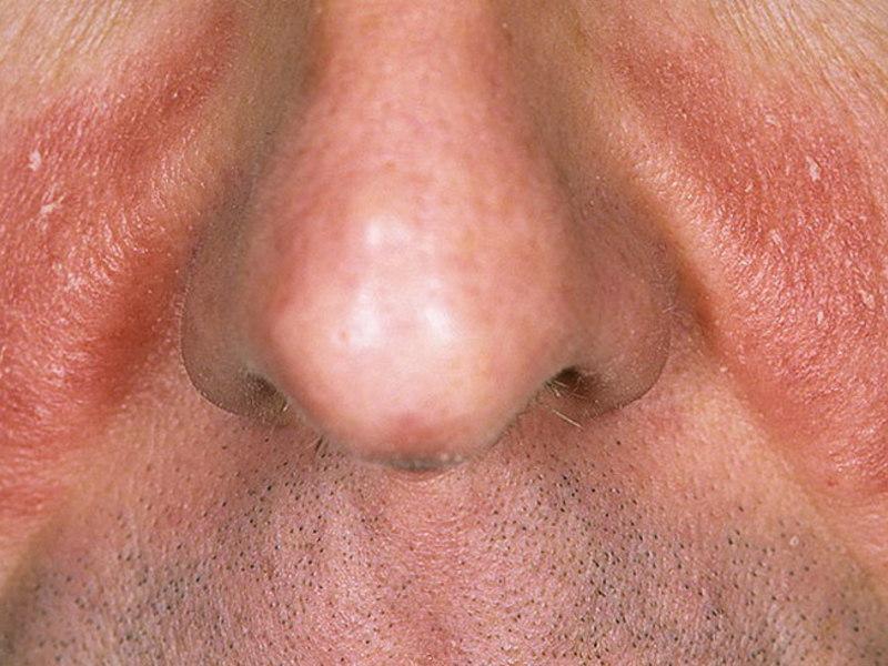 Проявление заболевания на лице