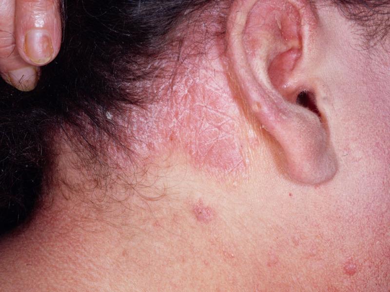 Методы лечения себорейного дерматита