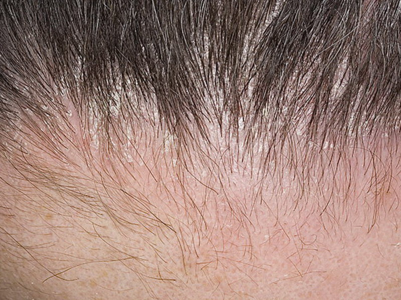 Себорея дерматит на голове фото thumbnail
