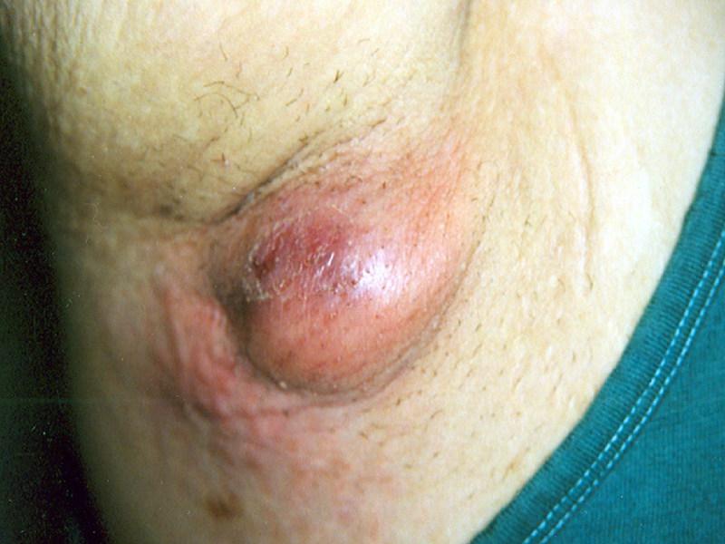 форум большая половая губа фурункул например, сломалась