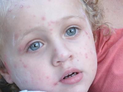 Что такое герпес у детей на теле, его причины, симптомы, фото и лечение