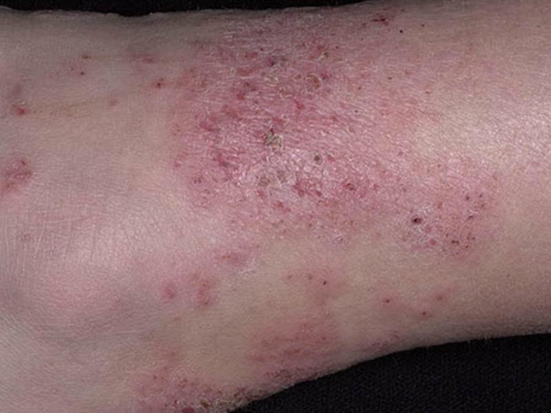 lick-dermatitis-neurodermatitis