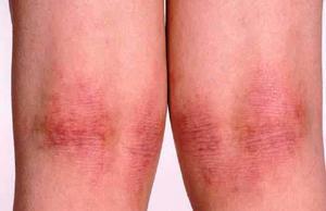 Клинические проявления дерматита показаны на фото.