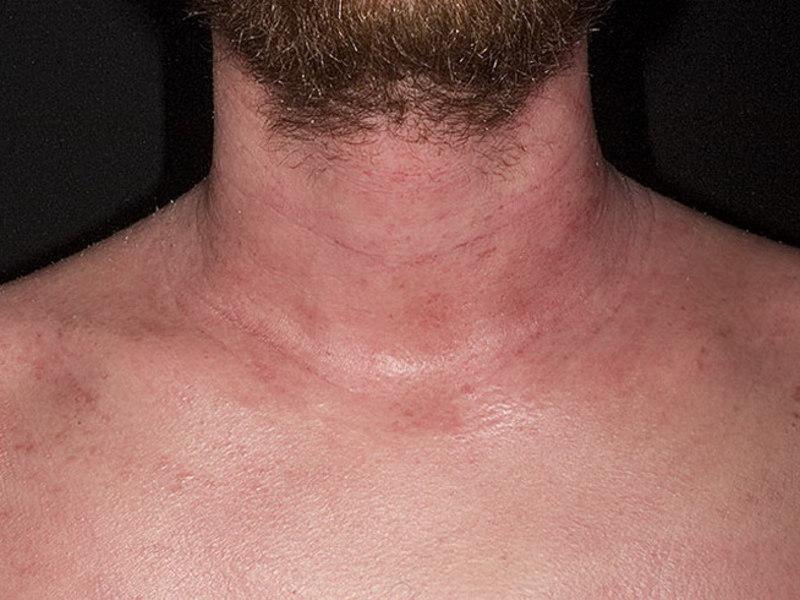 У грудного ребенка нейродермит