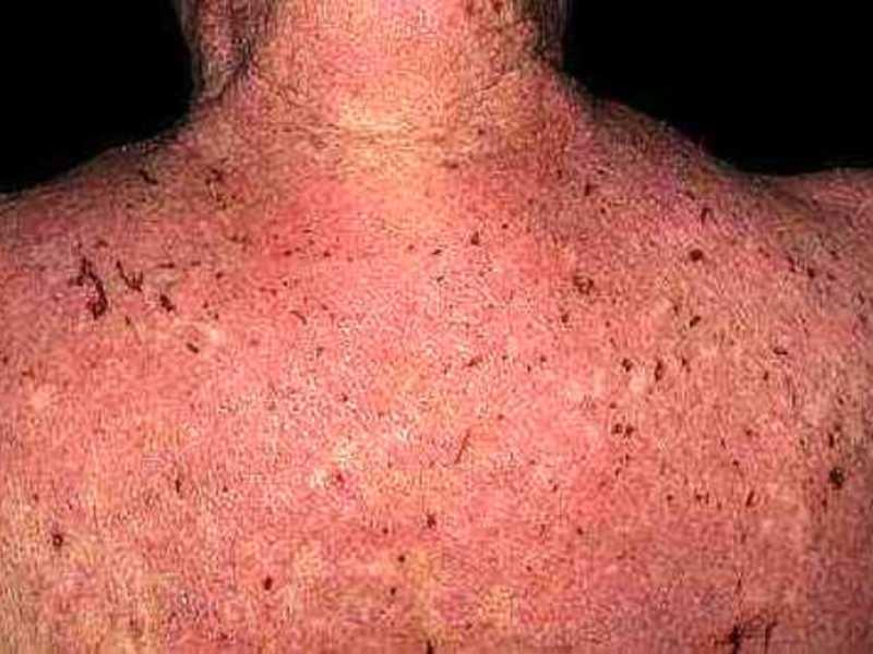 Как правильно лечат у взрослых атопический дерматит: фото кожных проявлений и схемы лечения