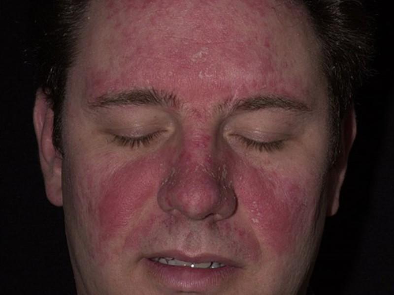 дерматит на лице у взрослых женщин причины фото
