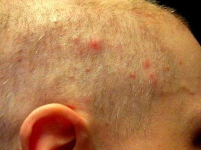 Прыщи на голове в волосах: причины появления и лечение у женщин и мужчин