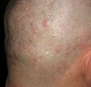Прыщи в волосяном покрове головы могут быть аллергическими или сигнализировать о других проблемах.